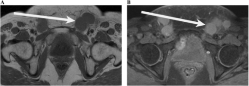 (A) T1-weighted axial image of the pelvis demonstrating multiple enlarged inguinal lymph nodes (arrow) which are low signal in a 61-year-old woman with cervical cancer. (B) Fat-saturated post-contrast images of the pelvis demonstrating multiple enlarged inguinal lymph nodes (arrow) which are of high signal in a 61-year-old woman with cervical cancer.