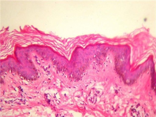 Base line skin biopsy showing lymphocytic infiltration.