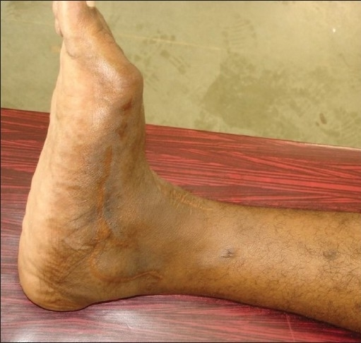 Two and half years after surgery the wounds have settled well, there is no oedema or contractures. There is flexion deformity of toes, but the patient is ambulant and has no complaints'