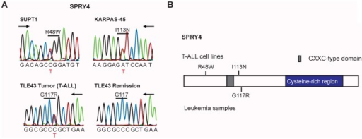 SPRY4 mutations.(A) Sanger sequencing chromatograms showing confirmed SPRY4 variants. (B) Domain structure of the SPRY4 protein with indication of novel detected variants.