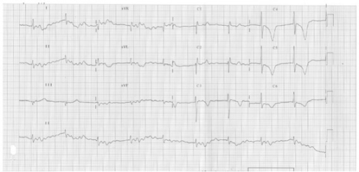ECG showed bradyarrhythmia, a HR of 48 beats/min, QTc interval prolongation (610 ms), and deep inverted T wave.