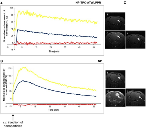 Cerebral biodistribution and tumor MRI contrast enhancement by gadolinium-based hybrid silica nanoparticles with or without targeting peptide monitored during 1h and, immediately after intravenous injection. Dynamic T1-weighted images acquisition was started before intravenous injection of the nanoparticles (25 µmol of Gd / 250 g of body weight) to characterize the kinetics of the nanoparticles biodistribution in the tumor. MRI signal intensity kinetics of injected peptide-conjugated NP-TPC-ATWLPPR (A), and un-conjugated NP (B) nanoparticles were expressed as the enhancement of contrast (EHC %) normalized on pre-injection signal. The curves represent time-dependent signal intensity recorded from different ROIs selected from:  Controlateral healthy hemisphere, Tumor tissue, or  the EHC in the tumor tissue as normalized on the contolateral healthy hemisphere. C) T1 coronal MRI images obtained (1) before nanoparticles injection, (2) maximal MRI signal intensity after injection and (3) 1h post-injection.