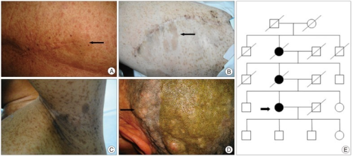 A : Operative scar on her back and café-au-lait spot (arrow). B : Operative scar on her left thigh and widespread café-au-lait spots (arrow). C : Widespread frecklings axillary. D : Cutaneous neurofibromas and plexiform neurofibroma (arrow). E : Patient's pedigree. The circles represent females and squares represent males. Black represents affected individuals. Oblique line represents dead individuals. The patient is signed in arrow, her mother and maternal grandmother have similar manifestations of neurofibromatosis 1.