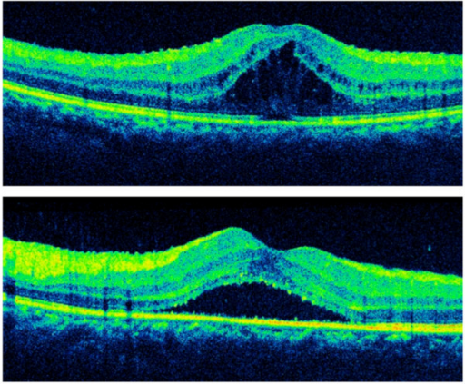 Optical coherence tomography before bilateral injections of dexamethasone intravitreal implant. Optical coherence tomography showed marked cystoid macular edema in the right eye. (top) The left eye showed subretinal fluid and minimal cystoid macular edema (bottom). The central retinal thickness was 592 μm in the right eye and 435 μm in the left eye.