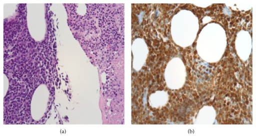 Histomorphologic and immunohistochemical analysis. (a) Relatively monotonous population of atypical lymphocytes infiltrating in adipose tissue with round to angulated nuclei, condensed nuclear chromatin, and inconspicuous nucleoli. The right side shows the same population of cells from the left in various stages of necrosis (H&E stained, formalin fixed, paraffin embedded section, at 40x magnification). (b) Immunohistochemical stain for CD79a, a B-cell specific antigen (formalin fixed, paraffin embedded section, at 40x magnification).