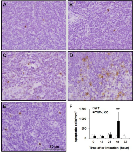 Apoptotic cells in the splenic white pulp of WT and TNF-α KO mice after intranasal S. pneumoniae infection. WT (A, C, E) and TNF-α KO (B, D) mice at 0 (A, B), 48 (C, D), and 72 h (E) post-infection. Apoptotic cells were quantified and expressed as the means±SD/mm2 (F). **P<0.01 compared with WT mice.