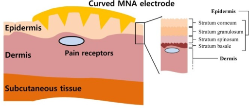 Structure of the skin with the microneedle array (MNA) electrode.