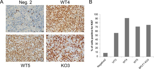 Increased proliferation in lymphoma region of spleens of infected mice with tumors. (A) Mice containing tumors showed increased rates of proliferation as determined by staining spleen sections with the proliferation marker Ki67. There were not significant differences between WT and DUB KO virus-infected tissue samples. (B) Ki67-positive cells from the tumor region were counted and graphed as percentages of total cells. The entire sample of negative control 2 was used for Ki67 staining.