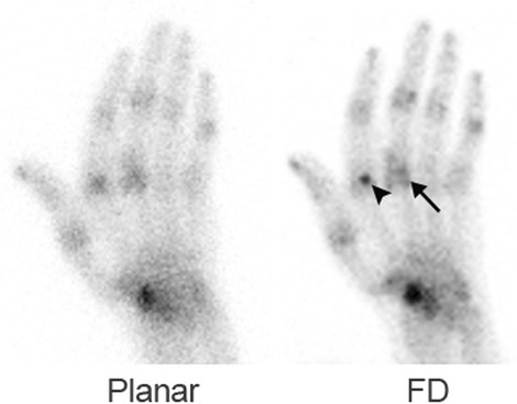 A 71-year-old man with rheumatoid arthritis. On both image data, multiple joints appear to be associated with increased uptake. On the CZT data, uptake is located on both sides of the joint space (arrow) and the increased uptake at the metacarpophalangeal region of the index finger appears to be a sesamoid bone (arrowhead)