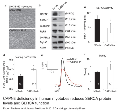 CAPN3 deficiency in human myotubes reduces SERCA protein levels and SERCA function.(a) LHCN-M2 myoblasts treated with control NS-shRNA or CAPN3-shRNAs anddifferentiated for 9 days. Scale bar = 50 μm. (b) Representative Western blotanalysis showing decrease of CAPN3 (12A2 mAb), SERCA1, SERCA2 and RyR1 proteinlevels in CAPN3-sh treated myotubes compared with controls. DHPRα2, MyHC and actinlevels remain unaltered. (c) SERCA-specific ATPase activity determined inhomogenates from LHCN-M2 myotubes. CAPN3-deficient myotubes show a significantreduction of SERCA activity compared with NS-controls (n = 3,*P < 0.05). D-F) Ca2+ imaging of LHCN-M2myotubes loaded with Fura2-AM shows increased cytosolic [Ca2+] anddelayed Ca2+ clearance from the cytosol in CAPN3 knockdown myotubes. (d)Resting cytosolic [Ca2+] was measured in the presence of 2 mmCa2+ at 37°C. CAPN3-deficient human myotubes show significantlyincreased resting cytosolic [Ca2+] compared with controls(*P < 0.05; n = 10 experiments). Totalnumbers of myotubes recorded are shown in the graph. (e) Two representative tracesof changes in Fura2-AM fluorescence ratios(F340/F380) fromCAPN3-shRNA and NS-shRNA treated myotubes. Ca2+ transients were elicitedby local stimulation with KCl 130 mm in the absence of extracellularCa2+. (f) Tau, the time constant of the Ca2+ transient decayphase in seconds (s), is significantly increased in CAPN3-deficient myotubes.*P < 0.05, n= total number of myotubesrecorded from three different experiments are shown in the graph.