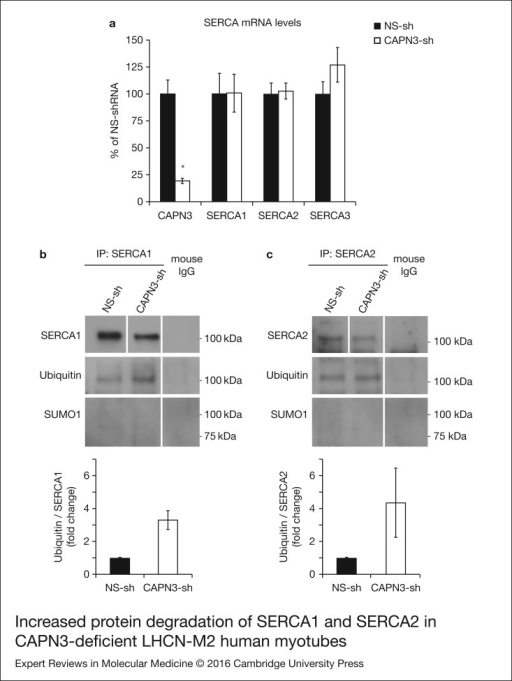 Increased protein degradation of SERCA1 and SERCA2 in CAPN3-deficient LHCN-M2 humanmyotubes. (a) CAPN3 and SERCA mRNA levels were analysed in human myotubes byquantitative RT–PCR. Statistical analysis showed significant decrease in CAPN3expression (19.3 ± 2.6%) in CAPN3 knockdown myotubes as compared to matched controls(100 ± 12.8%). N = 3; *P < 0.005. Nosignificant changes were observed in SERCA1, SERCA2 or SERCA3 mRNA expressionlevels. (b) SERCA1 and (c) SERCA2 ubiquitination and sumoylation were analysed incontrol and CAPN3-deficient human myotubes through SERCA1/2 immunoprecipitation withspecific mouse monoclonal antibodies. Pools of control and CAPN3-deficient cultureswere used for immunoprecipitation assays. N = 2 andN = 3 independent experiments were performed for SERCA1 and SERCA2,respectively. White lines indicate noncontiguous lanes run on the same gel.Ubiquitination of SERCA1 and SERCA2 in CAPN3-deficient myotubes was increased 3.30and 4.35-fold, respectively, compared with controls. No SUMO1 specific sumoylationof SERCA1 and SERCA2 proteins was detected in controls or CAPN3-deficientmyotubes.
