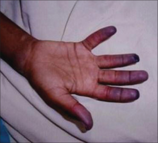Photograph of right hand showing duskiness of all digits progressing to frank gangrene