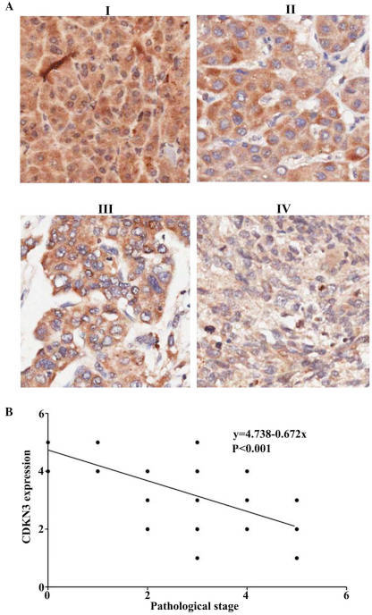 CDKN3 expression is correlated with tumor stage. (A) CDKN3 expression at hepatocellular carcinoma tumor stages I-IV were determined using immunohistochemistry. (B) The association between CDKN3 expression and tumor stage was determined using logistic regression analysis. CDKN3, cyclin-dependent kinase inhibitor 3.