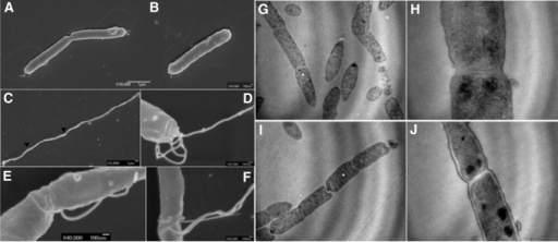 Electron microscopy of WT H. pylori strain X47-2AL (A, B) and its isogenic amiA mutant (C–F). (C) Shows the chaining phenotype of the amiA mutants. Arrows heads highlight flagella located in the middle of a bacterial chain. Examples of higher magnifications of flagella of the amiA mutant are illustrated in (D–F). (D) Shows polar flagella and (E, F) illustrate flagella at division sites. (G–J) Show transmission electron microscopy of the amiA mutant showing evenly spaced septa that failed to separate daugther cells. WT, wild-type.