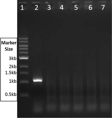 Colony PCR to confirm the first crossover event. Following re-streaking, five colonies were selected from agar with kanamycin and X-Glu, boiled in 20 µl milliQ water and PCR amplified with Bgl_F and Bgl_R. Following a double-crossover, the plasmid bgl gene would not be present. Lane 1 Biolabs 1 Kb ladder, lane 2 the 1.1 kb control bgl PCR product from unintegrated TM242 pUCG3.8Bgl-pdu, lanes 3–7 no PCR product from colonies selected on kanamycin X-Glu plates