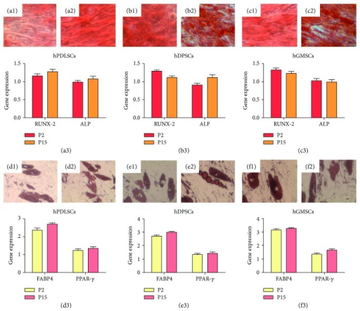 Mesengenic differentiation potential. hPDLSCs, hDPSCs, and hGMSCs induced to osteogenic commitment, stained with alizarin red S solution at P2 (a1, b1, and c1) and P15 (a2, b2, and c2) showed no statistical significative differences among two different culture stages. RUNX-2 and ALP expressions confirm light microscopy observations for osteogenic commitment (a3, b3, and c3). Adipogenic induction analyzed by oil red solution staining demonstrates the presence of lipid vacuoles at cytoplasmic level in cells cultured at early (d1, e1, and f1) and late passages (d2, e2, and f2). Both PPARγ and FABP4 showed no statistical differences after 28 days of culture, under differentiation conditions, at P2 and P15 (d3, e3, and f3). Mag.: 10x, bars: 10 μm.
