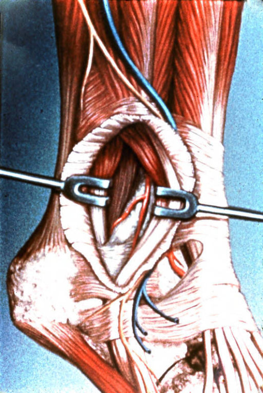 lateral malleolus