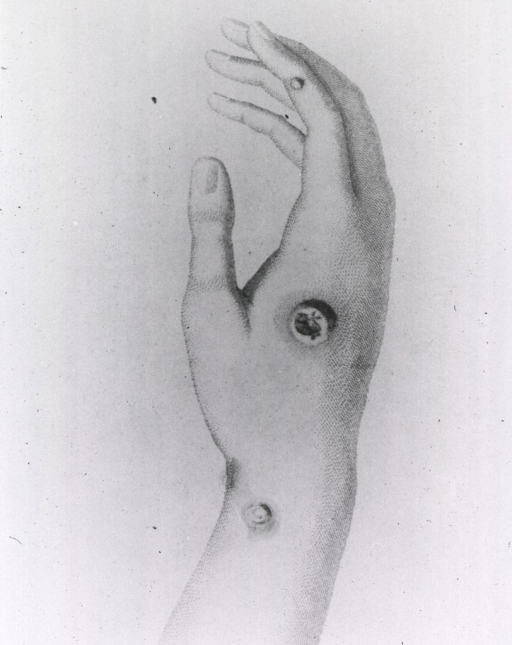 <p>A hand with smallpox sores.</p>