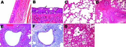 Histopathologic lesions in the trachea and lungs of control (A and C) or experimentally infected (B, D–F) dogs (A/canine/Korea/01/2007 [H3N2]) at different days postinoculation (dpi). A) Control dog at 9 dpi, showing normal pseudostratified columnar epithelium lining of the trachea; original magnification ×400. Hematoxylin and eosin (HE) stain. B) Influenza-infected dog at 9 dpi, showing necrotizing tracheitis characterized by necrosis (n), squamous metaplasia (s), and hyperplasia of the epithelium and nonsuppurative inflammation (c) in the connective tissue; original magnification ×400. HE stain. C) Control dog at 3 dpi, showing normal alveoli; original magnification ×200. HE stain. D) Influenza-infected dog at 3 dpi, showing severe diffuse necrotizing bronchitis and bronchiolitis with suppurative inflammation in the lumina; original magnification ×100. HE stain. E) Influenza-infected dog at 6 dpi, showing severe necrotizing bronchiolitis; original magnification ×200. HE stain. F) Influenza-infected dog at 6 dpi (serial section of E), showing large amounts of influenza A virus antigens (red stain; arrows) in the bronchiolar epithelium and lumen. Immunohistochemistry; Red Substrate (Dako, Carpinteria, CA, USA); Mayer's hematoxylin counterstain. G) Influenza-infected dog at 9 dpi, showing severe necrotizing alveolitis with accumulation of necrotic cells in terminal bronchioles (tb) and alveoli (a); original magnification ×200. HE stain.