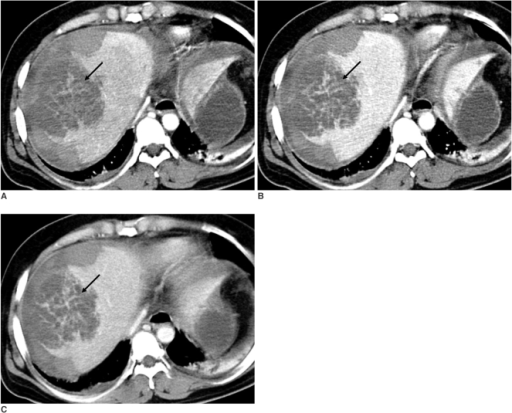 The triphasic, contrast-enhanced CT scan shows irregular and linear, septa-like densities (arrow) in the unenhancing, hypodense mass-like lesion at segment 8, which are isodense to liver parenchyma on the arterial (A), portal venous (B) and delayed (C) phases.