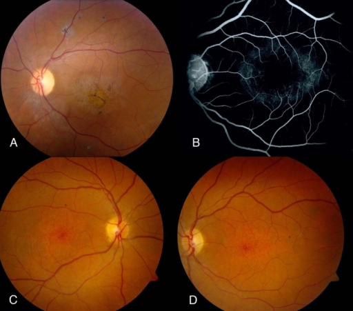 Typical retinal phenotype in affected members A: Left fundus of proband showing temporal optic nerve pallor, attenuated retinal blood vessels, macular pigmentary and atrophic changes, and some fine pigment clumping outside the vascular arcade. B: Mid-transit fluorescein angiogram of left fundus of younger sister reveals a dark choroid sign with some retinal pigment epithelium (RPE) transmission defects in a perifoveal distribution. C and D: Right and left fundus photographs of younger sister at age 12 years show mottling of RPE in macular region but no flagrant pigmentary changes; there is slight temporal pallor of the optic nerve heads, especially in left eye.