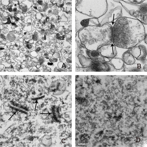 Electron micrographs of osmicated insoluble pellets obtained by Method 3).(A, B) Thin sections of SPM pellets show surprisingly intact synaptosomes and intact synaptic vesicles (A, B) as well as filamentous crossbridges (see arrows in B). (C) Synaptic membrane fractions extracted by Triton-X 100 at pH 6.0 show paired electron dense profiles representing synaptic junctions (see arrows in C). (D) PSD fraction obtained as an insoluble phase after synaptic membranes were extracted with Triton-X 100 at pH 8.0. Note that presynaptic specialization is removed and that the PSD is thinner than shown in A and B.