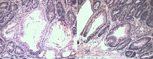 In many early adenomas after azoxymethane treatment, hyperplastic-like changes were also present. Adenomatous changes without (A) and with (B) evidence of cytologic dysplasia and cystically dilated crypts and hyperplastic changes in close proximity to muscularis mucosae were found in tumors after azoxymethane treatment (20 × magnification, H&E).