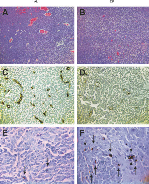 Influence of DR on microvessel density and apoptosis in the CT-2A brain tumour. DR was initiated 7 days before intracerebral tumour implantation and was continued for 11 days. H&E stained tumour sections in an AL mouse (A) and in a DR mouse (B) (100×). Factor VIII immunostaining from the tumour grown in an AL mouse (C) and in a DR mouse (D) (200×). TUNEL positive apoptotic cells (arrows) from the tumour grown in an AL mouse (E) and in a DR mouse (F) (400×). Each stained section was representative of the entire tumour. All images were produced from digital photography.