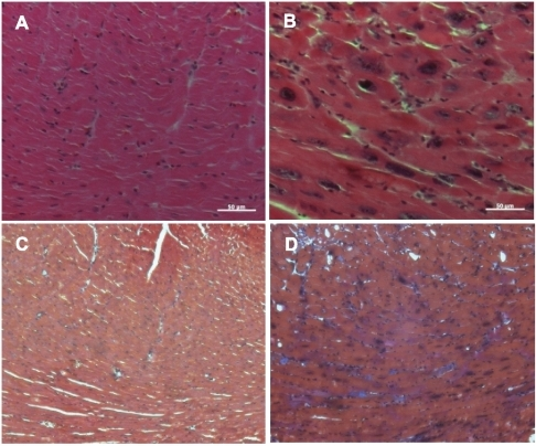 Histological analysis of hearts.Myocardial sections from Myc-OFF (A, C) and Myc-ON (B, D) were stained with hematoxylin and eosin (A, B). Significant myocardial disarray is observed in Myc-ON mice (B). Trichrome staining (C, D) also reveals hypertrophied cardiac myocytes in Myc-ON mice with mild fibrosis (D). Original magnification: X 400 for A and B, X 200 for C and D. Scale bar = 50 µm.