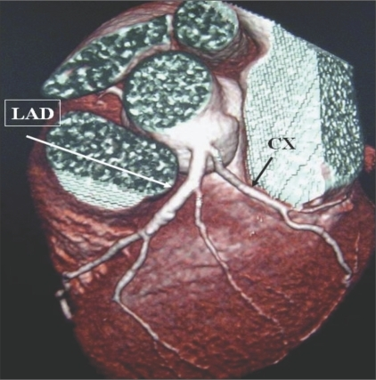 Early division of LM. VRT image shows LM with early division into LAD and CX arteries.