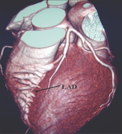 LAD bridging: VRT image shows bridging of the LAD (arrows). The LAD can get submerged in the myocardium of the left ventricle for a variable length (as in this case) when it is termed as myocardial bridging