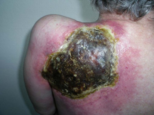 Extensive dermal necrosis in the pre-irradiated scapula