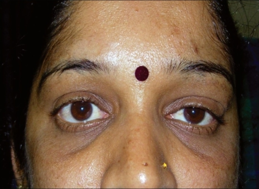 Clinical photograph showing left ptosis and inferior globe displacement