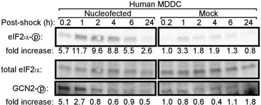 Nucleofection of primary human dendritic cells induces phosphorylation of eIF2α and GCN2Primary human MDDC were nucleofected or mock-treated and lysed at the indicated times. Phosphorylation of eIF2α and GCN2 was assessed by western blotting. For quantitation of western blot band densities, values were calculated as the ratio of phosphorylated eIF2α or GCN2 to total eIF2α and normalized to the values obtained in mock-treated cells at 0.2 hours post-shock.