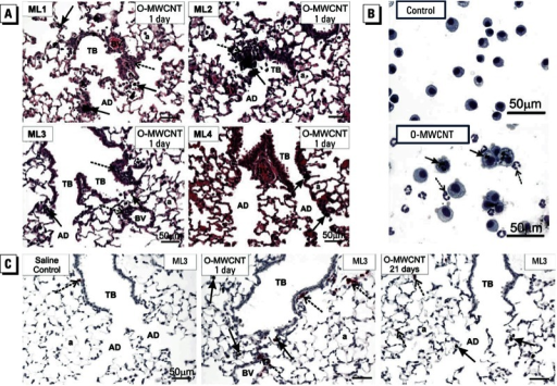 Results of lung histopathology (A), BAL cytospins (B), and immunohistochemistry (C) for mice exposed to DM only (control) or O-MWCNTs (40 μg/50 μL). Abbreviations: a, alveolus; AD, alveolar ducts; BV, blood vessel; TB, terminal bronchioles. (A) Histopathology showing lung inflammatory response to O-MWCNTs. Centriacinar bronchiolitis/alveolitis (dashed arrows) was induced by O-MWCNTs in three of four labs (ML1, ML2, ML3); one lab (ML4) found some deposition of O-MWCNTs in alveolar ducts with marginal inflammation. Solid arrows indicate macrophages containing O-MWCNT. (B) BAL cytospin images of cells from the lungs of mice exposed to DM (control) or O-MWCNTs; > 95% of macrophages from O-MWCNT–exposed animals were enlarged, activated alveolar macro­phages with numerous MWCNT inclusions (solid arrows) and neutrophils that do not contain MWCNTs (dashed arrows). The images are from a single lab (ML3) but are typical of responses from ML1 and ML2. (C) Immunohistochemistry using a monoclonal rat anti-mouse neutrophil (allotypic marker clone 7/4) antibody showing the location of neutro­phils (dashed arrows) near terminal bronchioles and in relation to macrophages containing O-MWCNT (solid arrows). Representative images are from ML3.
