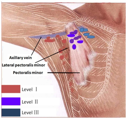 Diagrammatic Representation Of Axillary Lymph Node Leve Open I