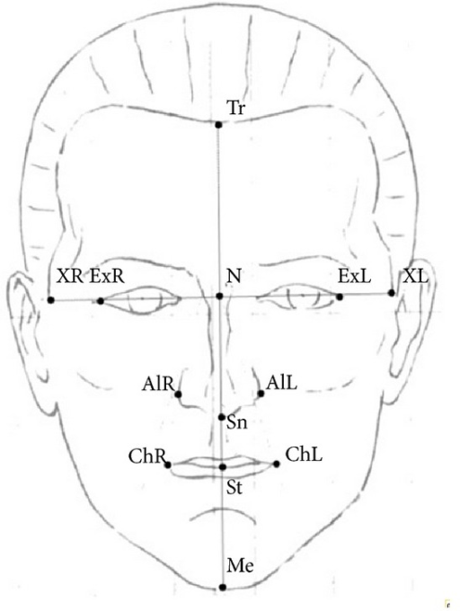 Frontal soft tissue landmarks used in this study. Tr: trichion, N: nasion, Sn: subnasale, ExR: exocanthion right, ExL: exocanthion left, Alr: alare right, AlL: alare left, XR: the most right point according to bipupillary line, and XL: the most left point according to bipupillary line. Ratios used: Tr-N/Sn-Me, N-Sn/Sn-Me, Sn-St/St-Me, XR-XL/Tr-Me, Ex-Me/Ex-Tr, Al-Me/Ex-Al, Al-Me/Ch-Me, Ch-Me/Al-Ch, and ChR-ChL/AlR-AlL.