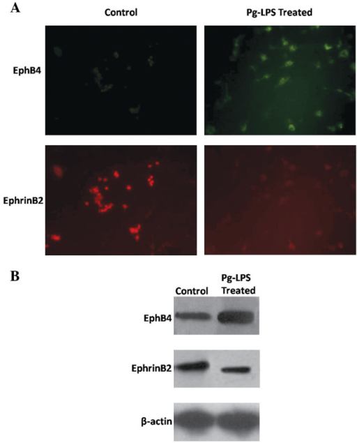 Images of (A) immunofluorescence staining and (B) western blot analysis. After being treated with Pg-LPS at a concentration of 75 ng/ml for 24 h, the expression of EphB4 in the osteoblast-osteoclast co-culture increased while that of EphrinB2 decreased. Pg-LPS, Porphyromonas gingivalis lipopolysaccharide.