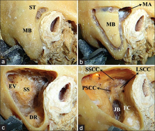 mastoid bone – citybeauty, Human body