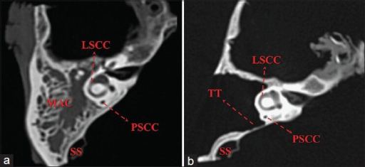 Axial bone window CT scan of a right-sided mastoid bone | Open-i