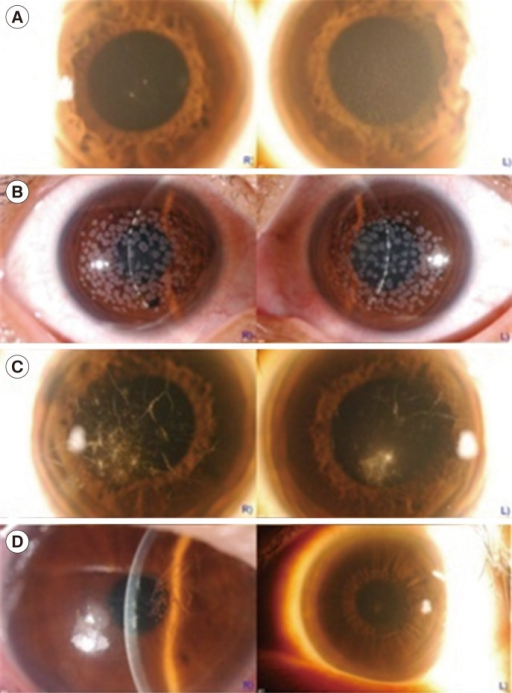 Slit-lamp photographs. (A) Patient with GCD2 without any TGFBI mutations and a few discrete granular deposits in the anterior stroma with unilateral manifestation. (B) Patient with GCD2 carrying a novel p.A179* variant, as well as the p.R124H mutation, with progressed granular opacities in a dense confluent pattern covering most of the corneal surface. (C) Patient with LCD1, carrying the p.L569Q variant and large lattice lines. (D) Patient with LCD1, carrying the p.T621P variant with recurrent corneal erosions with typical lattice lines.