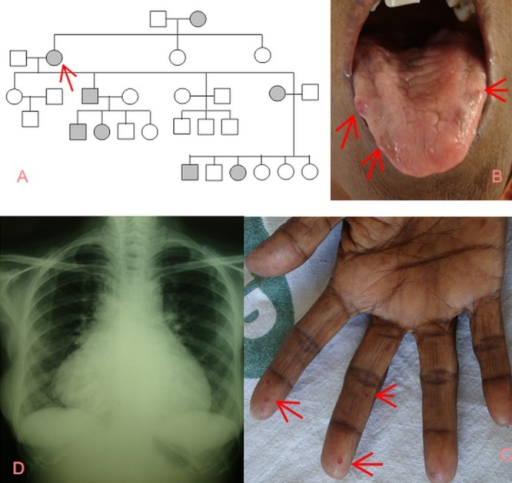 Family history and symptoms1A: Family pedigree revealing autosomal dominant pattern; 1B: Telangiectasia on the tongue; 1C: Telangiectasia in the fingers; 1D: CXR –cardiomegaly and bilateral lower-zone haziness