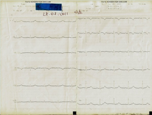Patient's ECG, has viewed repolarization changes during follow-up.