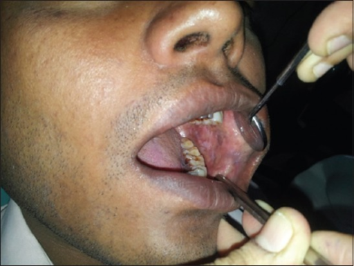 Patient showing Grade III oral submucous fibrosis.