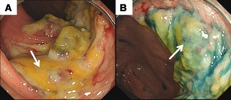 a A white coating could be seen in the vicinity of the Bauhin valve. b Localized distorted ulcers could be seen in the ascending colon. Mucosal necrosis was not found
