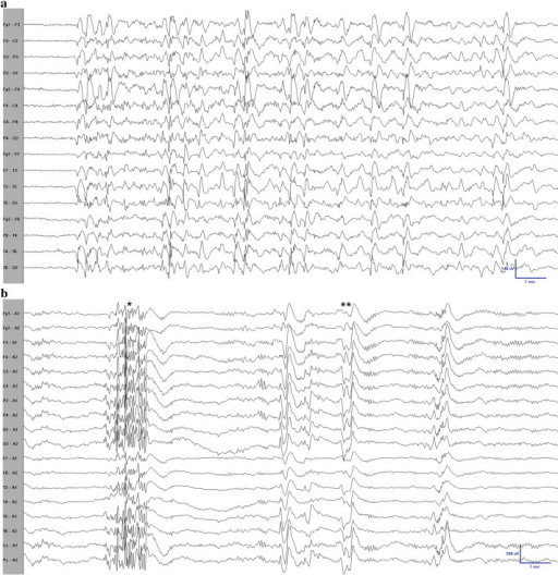 Inter-ictal EEG recordings during wakefulness (top) and sleep (bottom). The top EEG is displayed in a longitudinal bipolar montage and the bottom in a referential montage. The awake EEG shows multiple generalized spikes, polyspikes, and polyspikes-and-waves. The asleep EEG shows polyspikes (*) and polyspikes-and-wave complexes (**). All EEG electrodes were placed using the international 10–20 system of electrode placement. Technical parameters; low frequency filter 1 Hz, high frequency filter 70 Hz, notch off, sensitivity 7 μV/mm, time base 30 mm/s, sampling rate 500 Hz.