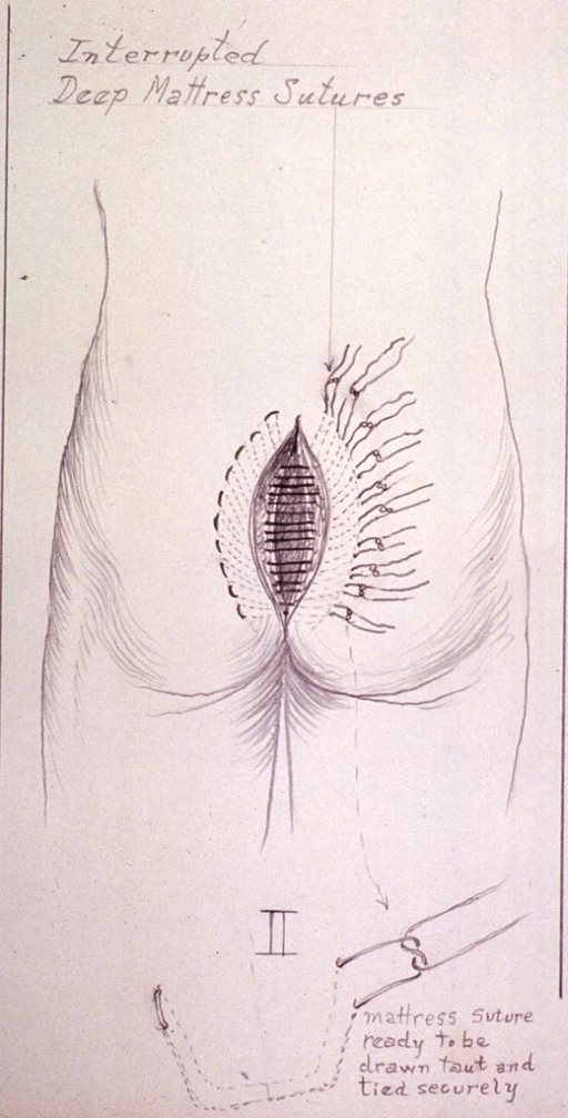 <p>Illustration showing placement of deep mattress sutures after removal of a cyst.</p>