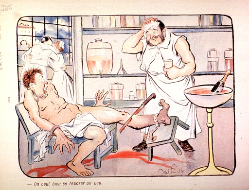 <p>The surgeon interrupts the amputation of a man's leg to rest and to get a refreshing drink.</p>