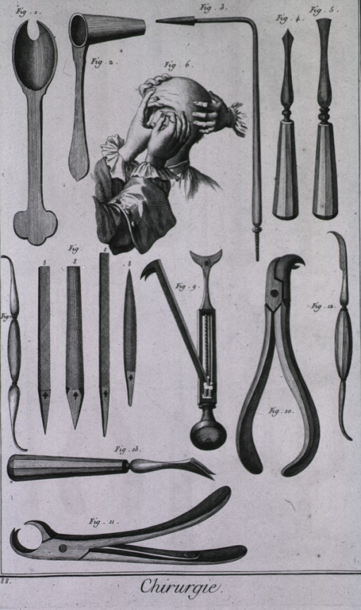 <p>Among the instruments is a silver spoon to cover the eye during a cyst operation, a funnel to cauterize nails, a cautery, an instrument to perforate the nail, a raspatory for teeth, a probe and a file to use on decayed teeth, dentist's forceps, a lancet for baring the neck of teeth, and a dentist's punch.</p>