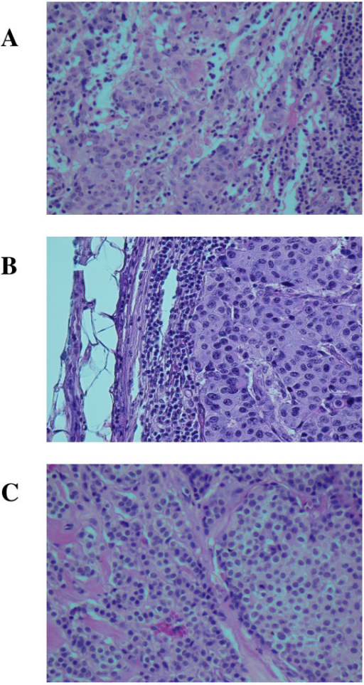 Hematoxylin and eosin stained slides of formalin-fixed, paraffin-embedded tissue sample blocks of breast tumor tissue and metastatic breast tumor tissue in lymph node. Panel A (father): metastatic ductal carcinoma of breast in axillary lymph node. The tumor is almost completely replacing the normal tissue in this 2-cm node. Note the rim of residual subcapsular lymphoid tissue. Panel B (mother): invasive moderately differentiated ductal carcinoma of breast. Note the prominent lymphocytic response. Panel C (daughter): invasive and in situ lobular carcinoma of breast. Only a portion of the round edge of a lobule containing lobular carcinoma in situ is seen here. Magnification is 200X.
